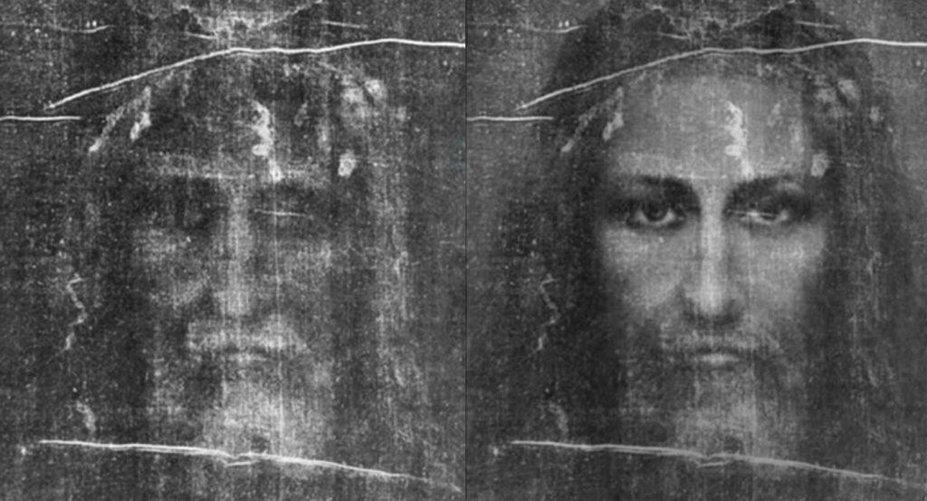 x-ray of shroud of turin